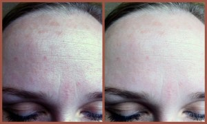 removal of wrinkles on the forehead