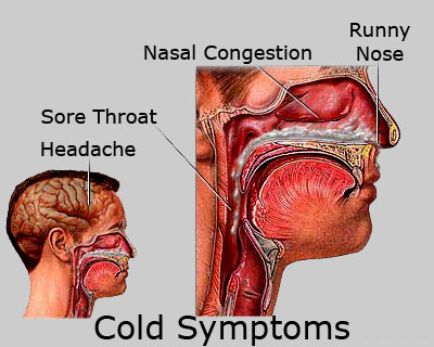 how to clear your throat when you have a cold