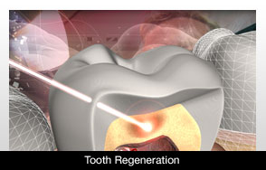 Regenerate teeth