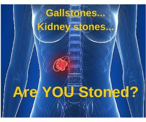 Gallstones, Kidney stones - Are You Stoned